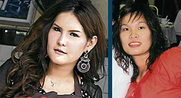 Ratphila Chairungkit cirugía plástica en Tailandia