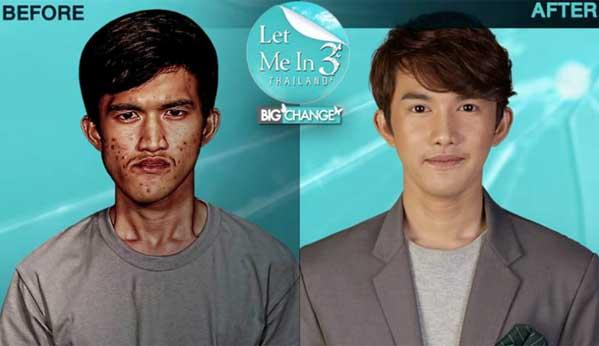 Cirugía plástica hombre Tailandia