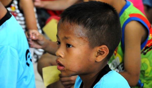niño con sida Tailandia>