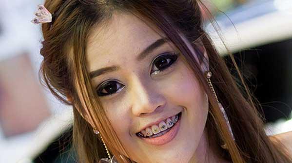Aparatos chica dientes Tailandia