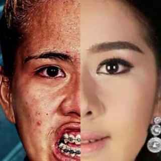 Transformación cirugía Tailandia