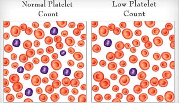 dengue plaquetas